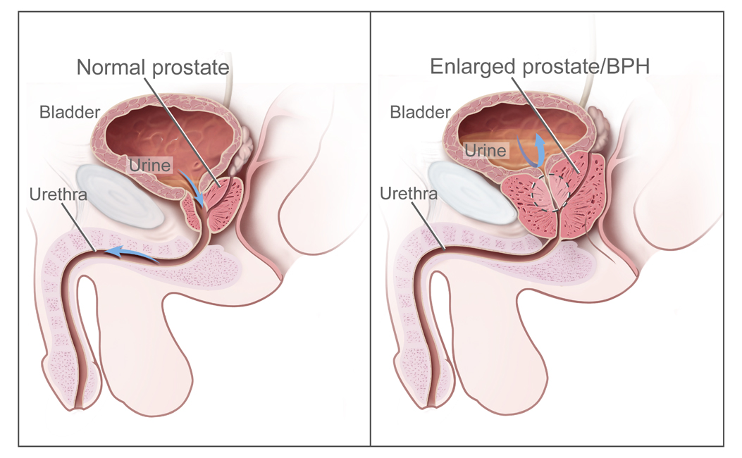 ENLARGED PROSTATE GLAND
