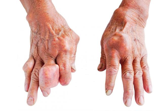 SAY GOODBYE TO GOUT!